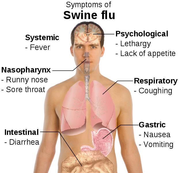 h1n1-flu-symptoms